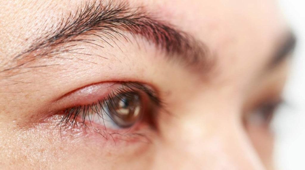 Röda och rinnande ögon? Då kan du ha drabbats av ögoninflammation.