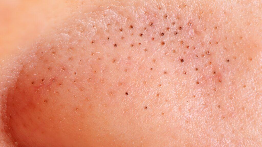 Pormaskar bildas när talgkörtlarnas mynningar täpps till. En stor bov i dramat är en hög produktion av talg, men även en obalanserad produktion av hudceller spelar roll.