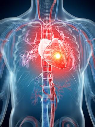 tyst hjärtinfarkt symtom