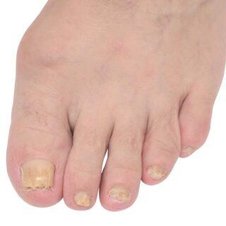 nagelsvamp ta bort nageln