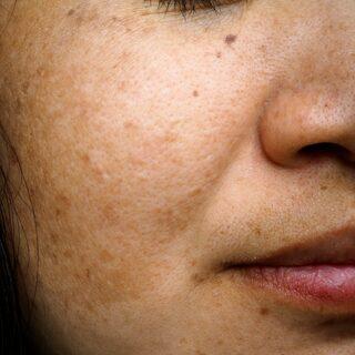 bruna fläckar i ansiktet