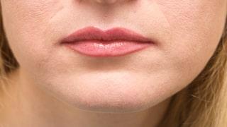 svidande läppar allergi