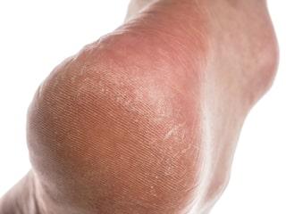 gula förhårdnader fötter
