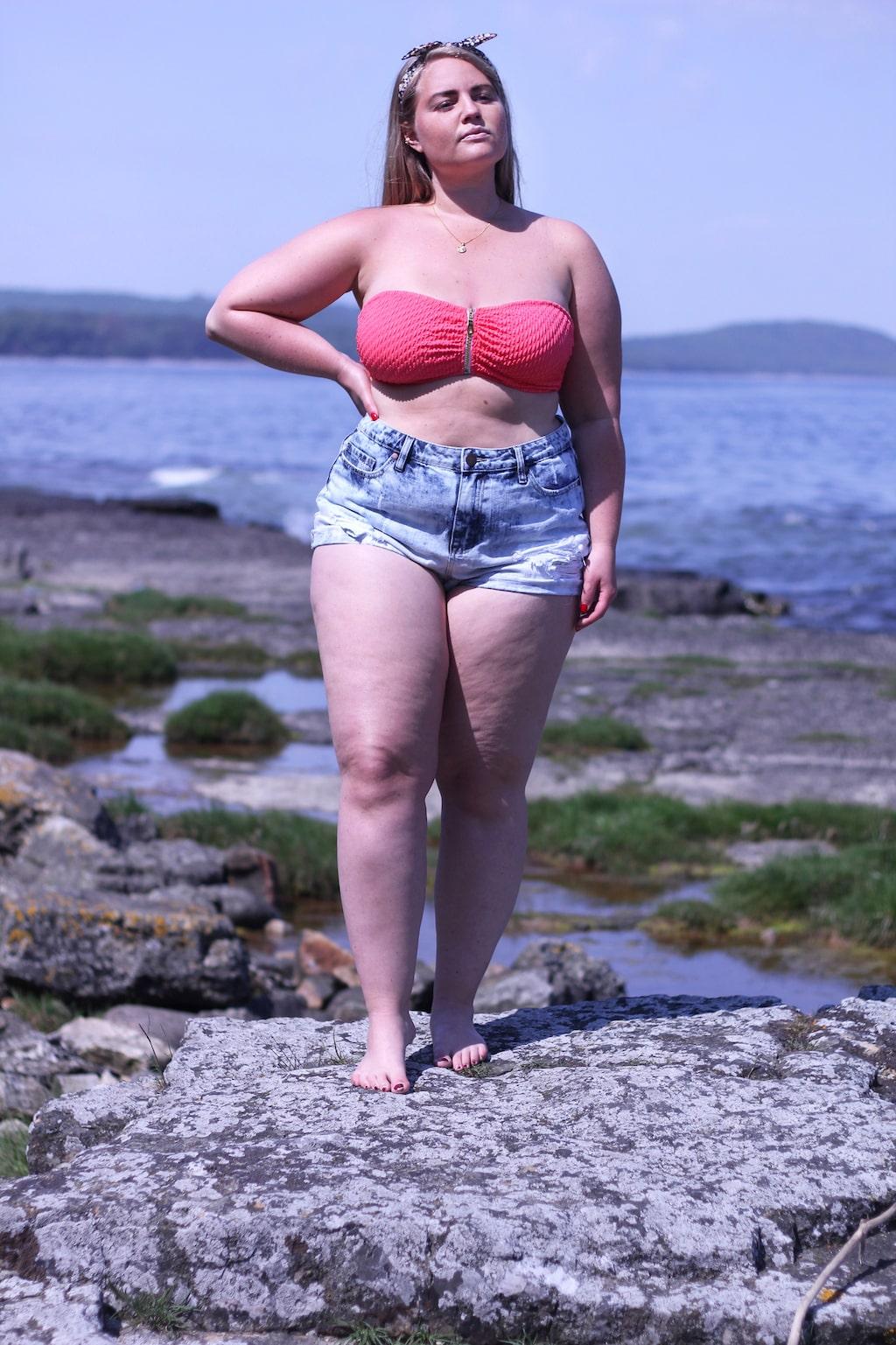 Johanna har inte vågat ha shorts sedan hon var åtta år.