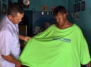 Varldens fetaste gick ner 127 kilo