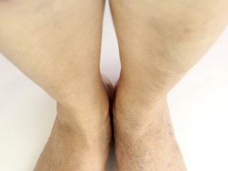 svullet underben och fot