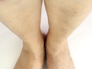värk i benen influensa