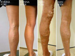 Ytliga blodkärl på benen