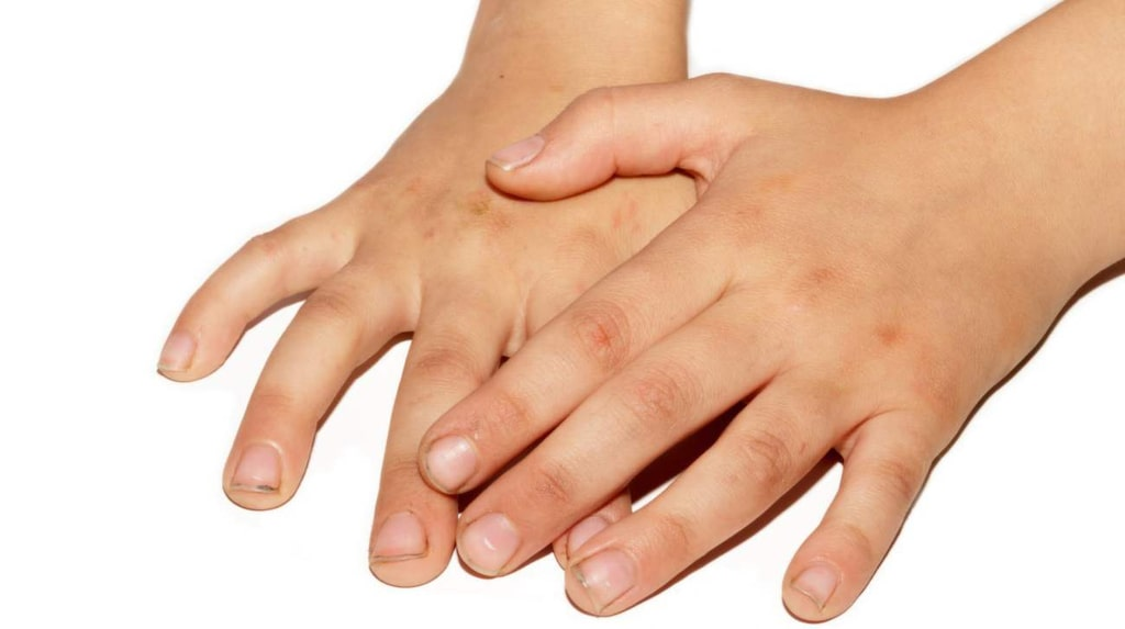 <p>När kroppen inte mår bra skickar den ut varningssignaler. Ibland börjar magen krångla, ibland visar det sig på hud och hår.<br></p>
