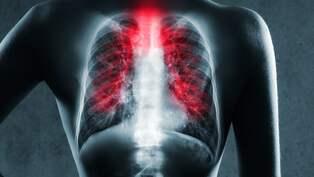 mat i lungan symptom