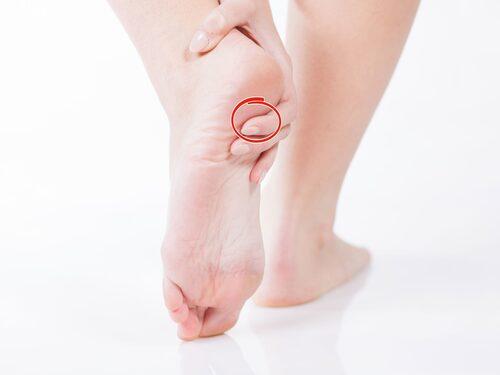 Plantarfascian är ett senstråk under foten som har till uppgift att stödja hålfotens båge så den inte sjunker ihop.
