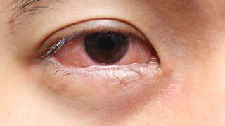 ögoninflammation receptfria läkemedel