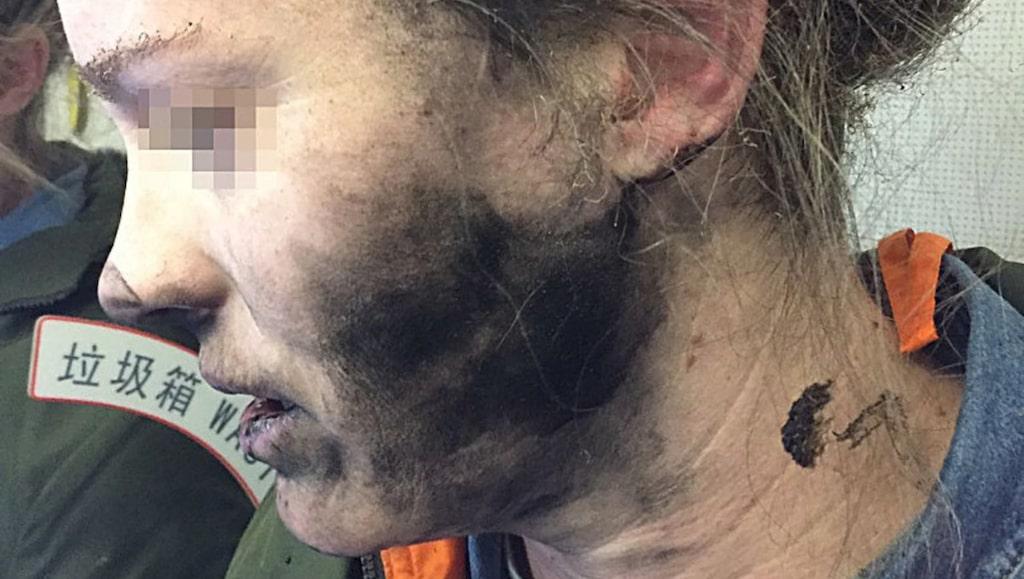 Kvinnan fick brännskador i ansiktet när hennes hörlurar plötsligt exploderade ombord på flyget.