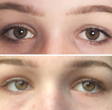 """Före (över) och efter (under) cirka 15 veckors användning av Xlash ögonfransserum: """"Mina fransar såg ut att vara dubbelt så långa som före testet och de var mörka och tätare sju veckor in."""""""