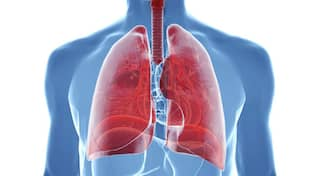 propp i lungan cancer