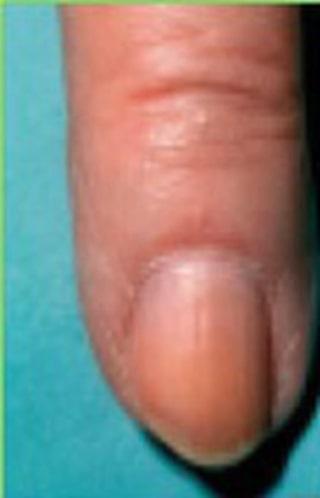 blod under nagel