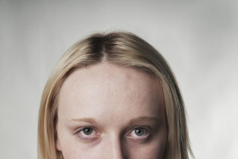 <p><strong>Slemhinnor och ögonvitor:</strong> Munnen och ögonen blir blekare vid kraftig blodbrist, eftersom de i vanliga fall färgas av de ytliga blodkärlen.</p>