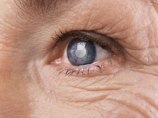 suddig syn på ett öga